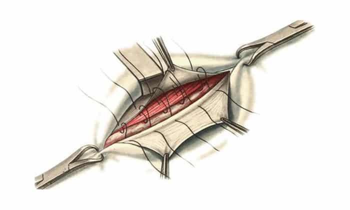 Натяжная пластика собственными тканями – грыжевой дефект ушивается апоневрозом, фасциями, путем многослойного пришивания тканей