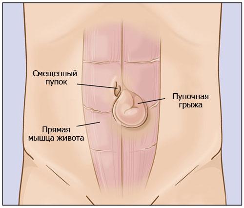 Что такое пупочная грыжа и нужно ли делать операцию