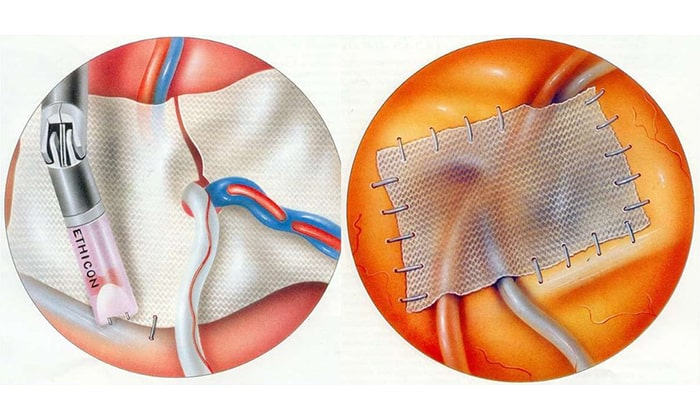 Ненатяжная пластика (герниопластика) – операция с установкой синтетической сетки