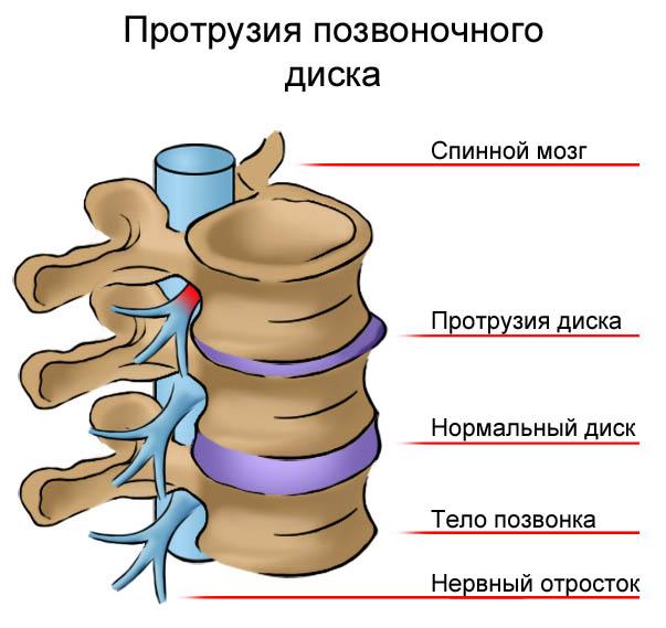грыжи и протрузии лечение