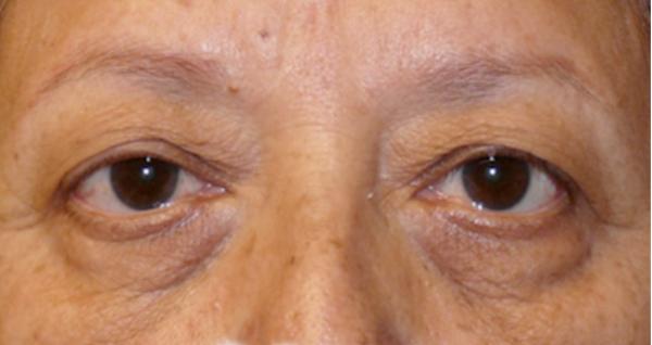 Темные круги под глазами у женщин - причины и лечение дома
