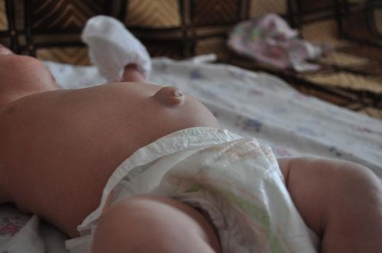 как выглядит грыжа у новорожденных мальчиков