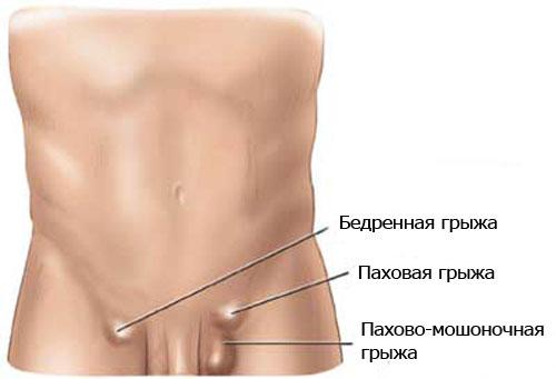 операции при бедренных грыжах