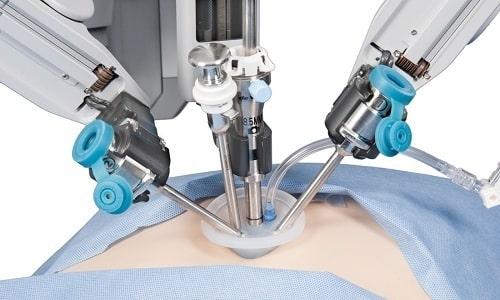 Лапароскопия проводится у мужчин и женщин, путем создания небольших проколов на животе