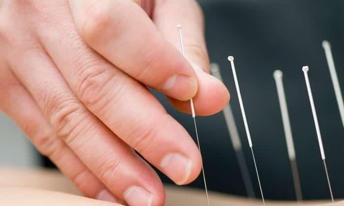 Больному врач может рекомендовать иглорефлексотерапию