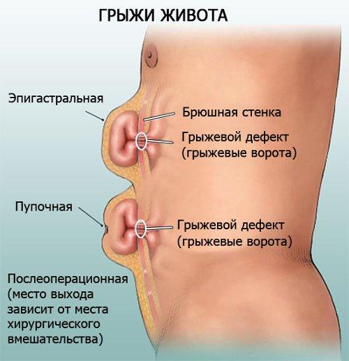 Ожирение печени симптомы лечение народными средствами лечение