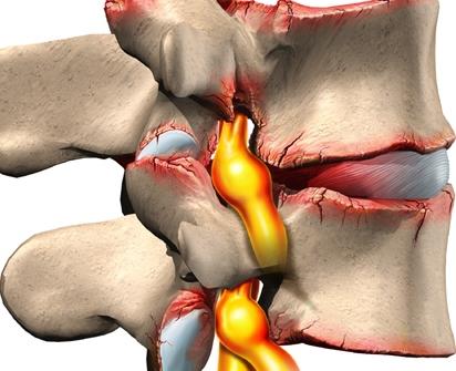 Тренировки для шеи при остеохондрозе