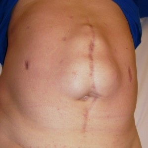 грыжа живота после операции