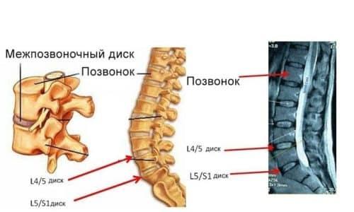 Грыжа L5 S1 находится в пояснично-крестцовом отделе позвоночника, в месте, где приходится наибольшая нагрузка на спину