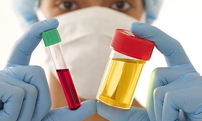 При подозрении на паховую грыжу проводится анализ крови и мочи