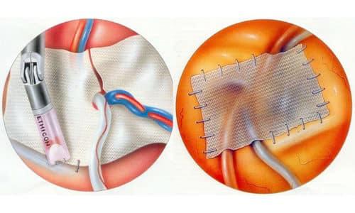 Операция по Лихтенштейну проводится обязательно с укреплением сетчатого имплантата, который фиксируется за семенным канатиком