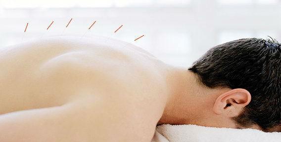 лечение межпозвоночной грыжи иглоукалыванием