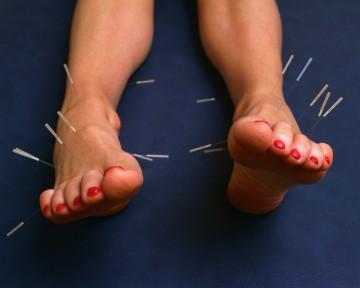 иглоукалывание ног при грыже