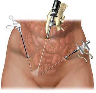 можно ли ребенку сделать обрезание и операцию по удалению грыжи