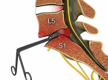 Гимнастика седалищный нерв лечение в домашних условиях