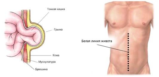 спигелиевая грыжа с левой стороны