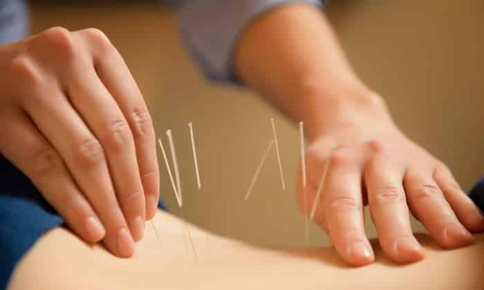 Иглоукалывание применяют в послеоперационный период и для профилактики грыжи