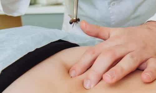 Апитерапия при грыже позвоночника, или лечение пчелиным ядом, - эффективный метод, с помощью которого можно снять симптомы заболевания