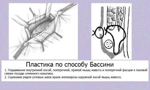Среди хирургических операций по удалению грыжи при бедренном способе, среди хирургов пользуется популярностью пластика по методу Бассини