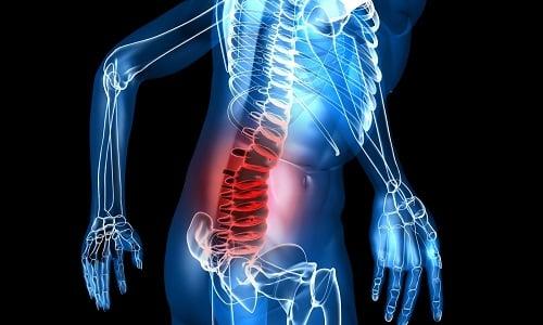 Одной из задач ЛФК является уменьшение болевого синдрома