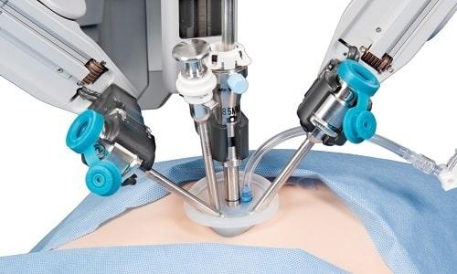 Полностью устранить проблему можно только благодаря оперативному вмешательству - герниопластике