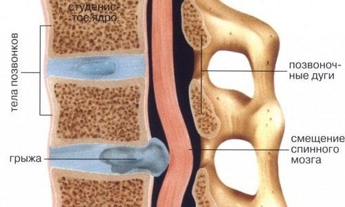При грыже сдавливаются сосуды и нервы спинного мозга, в том числе отвечающие за питание и чувствительность половых органов