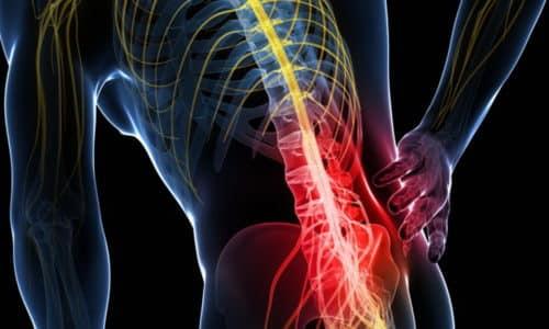 Болезни позвоночного столба (остеохондроз, искривление, патология соединительных тканей) являются главной причиной образования грыжи