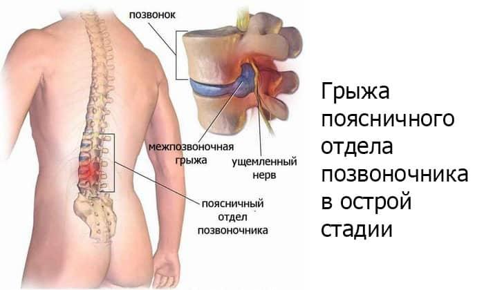 Благоприятное воздействие прогревания на организм в бане наблюдается, когда заболевание спины не в острой стадии