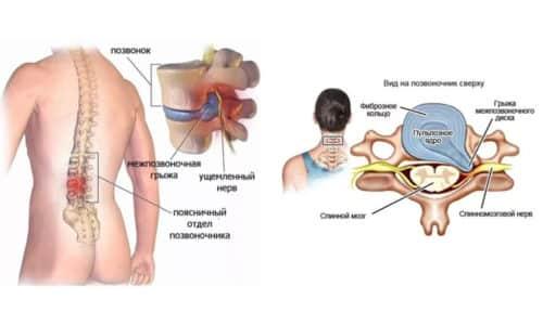 С грыжей позвоночника сталкиваются немало людей, и нередко для устранения проблемы врачи предлагают хирургическое вмешательство