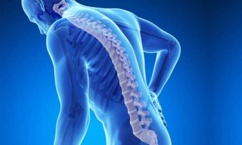 Метод ударно-волнового воздействия рекомендуется при остеопорозе