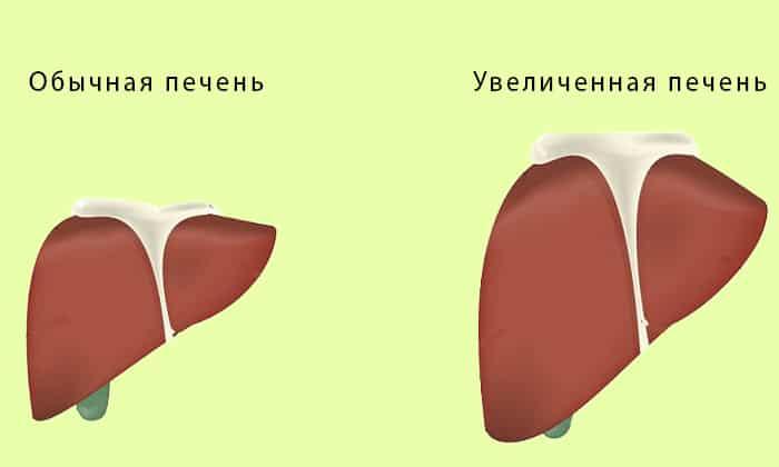 При заболевании печени нельзя применять апитерапию
