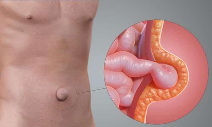 Возникновение дефекта в области пупка сопровождается расширением пупочного кольца, выпячивание увеличивается в вертикальном положении больного и при выполнении физических работ
