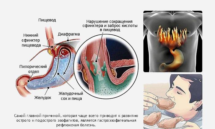 Патология чаще развивается у людей с нарушениями моторики желудочно-кишечного тракта