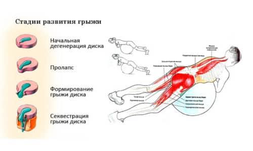 Упражнения с гимнастическим мячом при грыже позвоночника являются эффективным методом лечения заболевания на разных стадиях