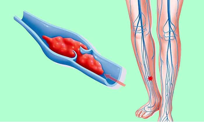 С венозными тромбозами и тромбофлебитами Алмаг также эффективен