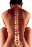 Другие грыжи спины