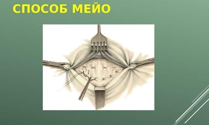 В ходе операции по методу Мейо разрезают грыжевой мешок, разъединяют спайки, помещают органы в физиологическое положение