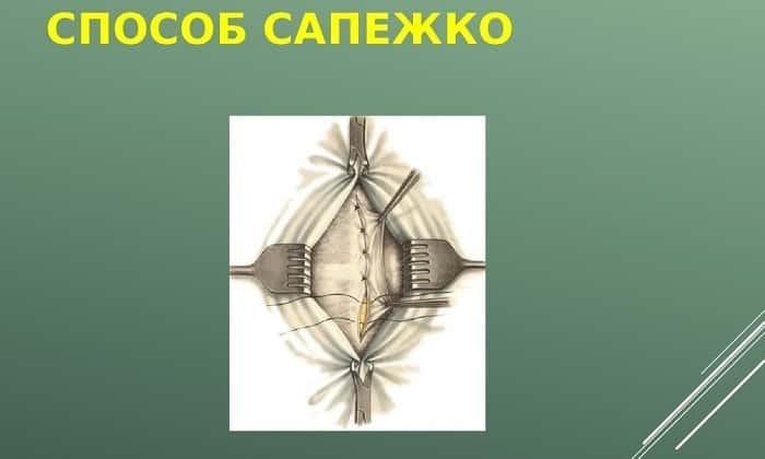 При выполнении операции по методу Сапежко края пупочного кольца сшиваются в вертикальном положении