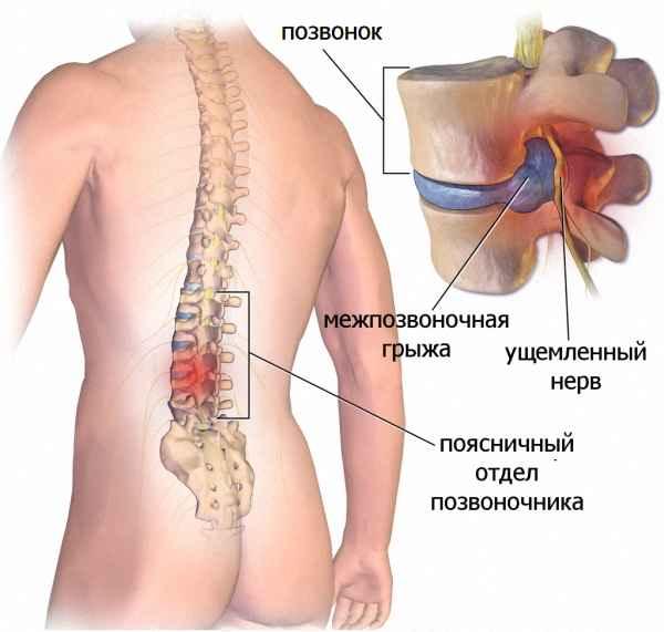 Лекарства при межпозвоночной грыжи поясничного отдела без операции thumbnail