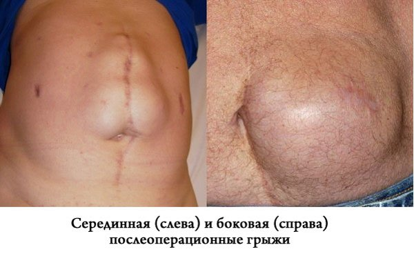 похудеть после операции по удалению матки