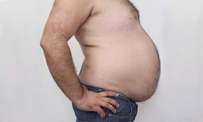 Грыжа может образоваться и у людей с избыточным весом