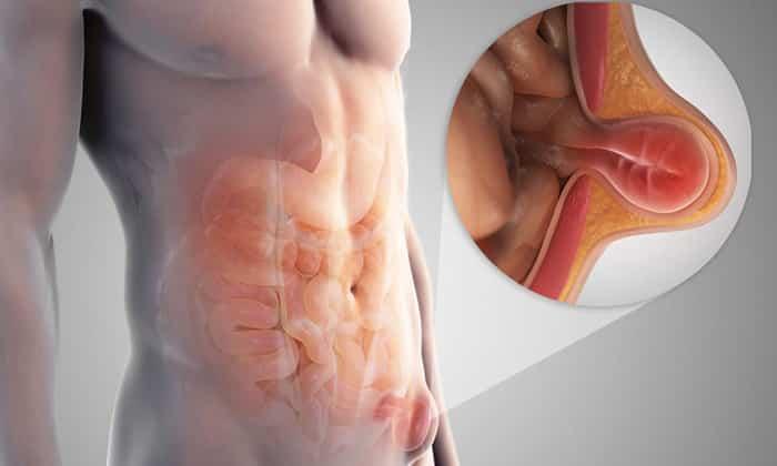 У мужчин операция более сложная, нежели у женщин, что обусловлено анатомическими особенностями