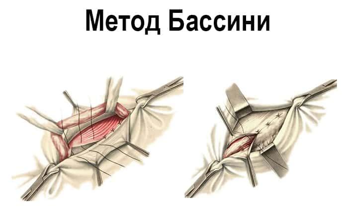 К открытым способам хирургического лечения паховой грыжи у женщин относятся метод Бассини