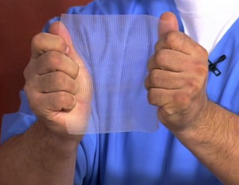 сетка для лечения грыжи