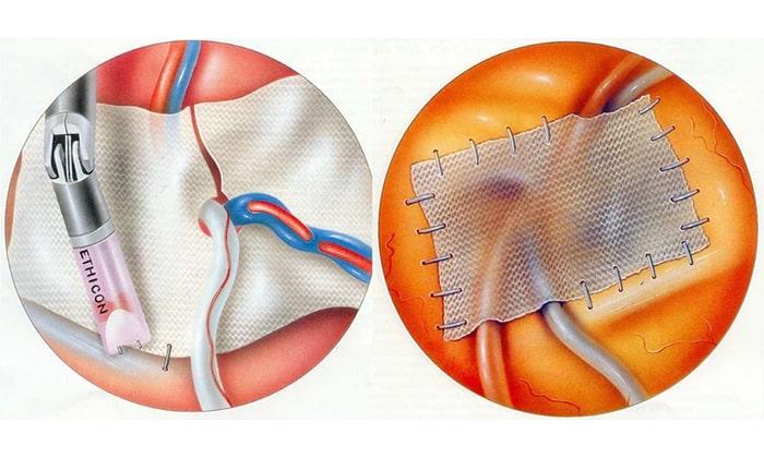 Наиболее популярными операциями являются пластика собственными тканями по методу Шоулдайса и Лихтенштейна