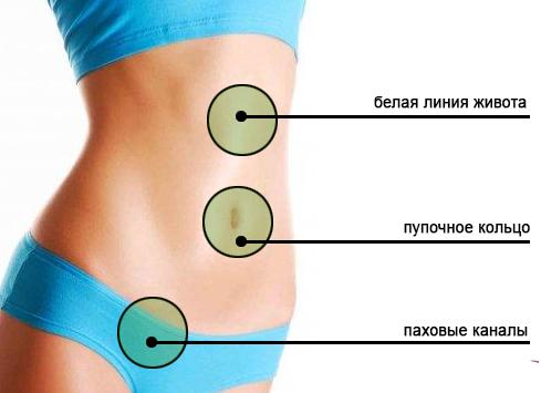 Как определить грыжу на животе