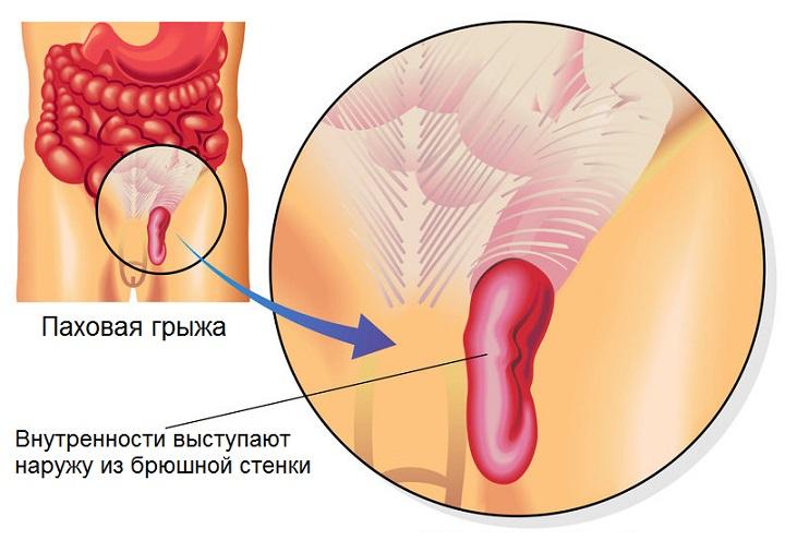 Лечение без операции паховой грыжи у мужчин: народные средства и упражнения