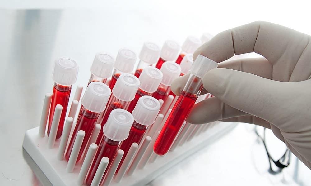 Анализ крови сдают для определения состояния пациента