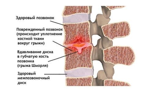 Часто грыжа Шморля - это наследственная патология, при этом происходит деформация костных тканей отдельных позвонков, причина такого явления - давление межпозвонкового хряща на них