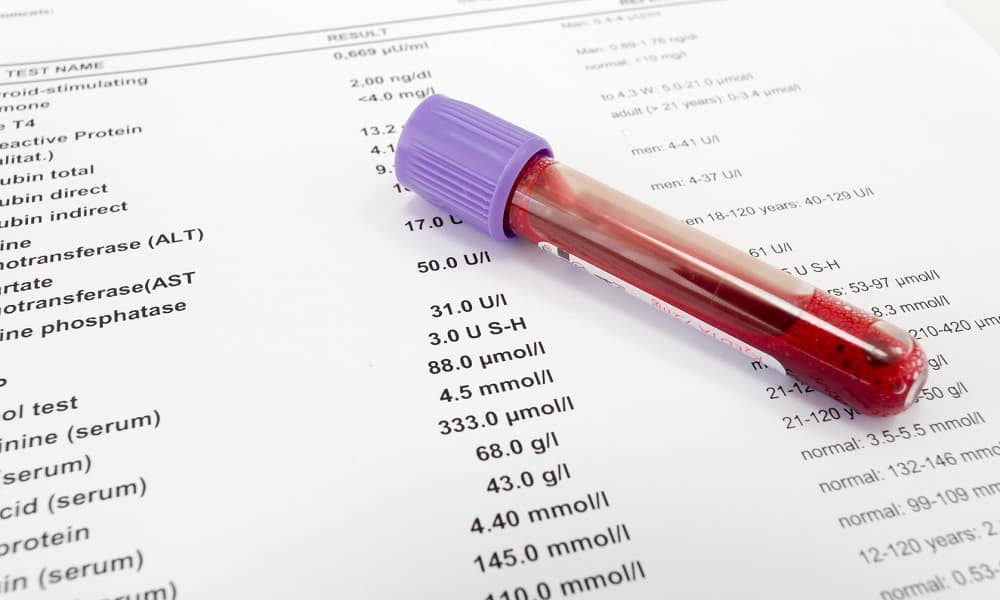 Анализ крови назначают при паховой грыже